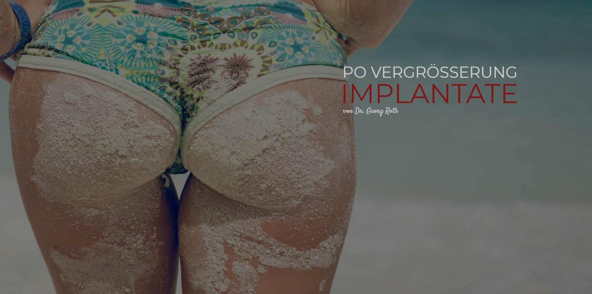 Po Vergrößerung Implantate